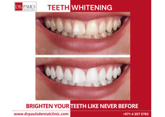 TEETH WHITENING IN DUBAI